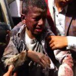 ائتلاف 14 فبراير يستنكر حذف «غوتيريش» لتحالف العدوان على اليمن من القائمة السوداء لقتل الأطفال