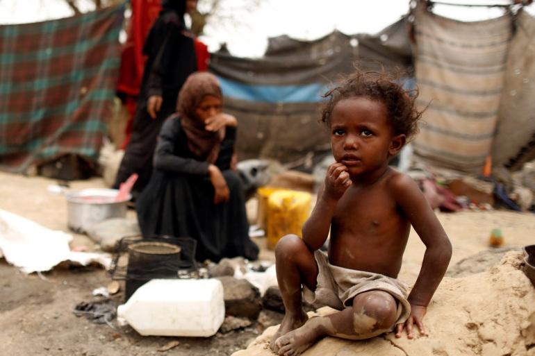 العدوان السعودي يحول اليمن إلى أكبر أزمة إنسانية والامم المتحدة تستغيث