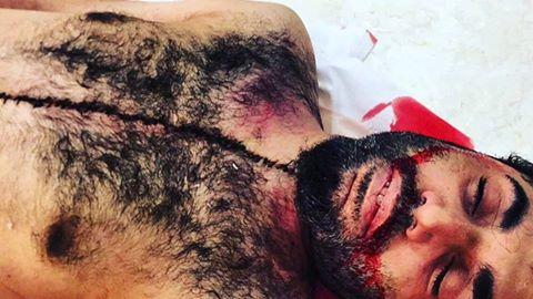بالصور: جسد الشهيد «حسن الحايكي» يكذّب مزاعم الداخليّة حول حقيقة استشهاده