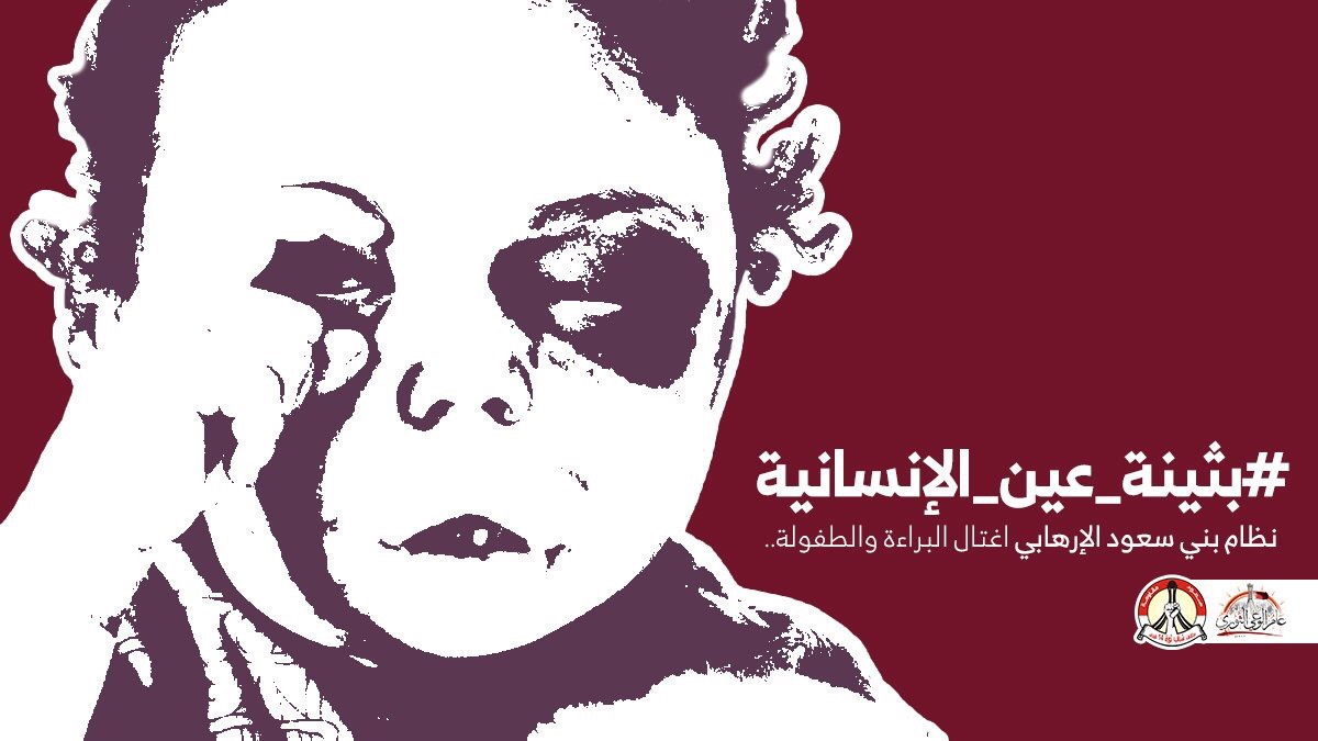 Buthaina is the eye of humanity.. an international campaign denounces Saudi led aggression on Yemen