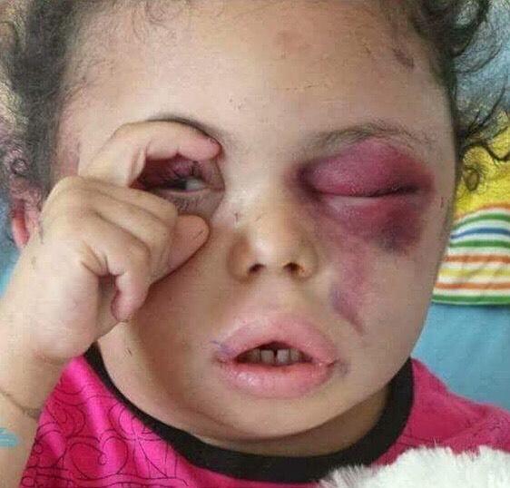 «بثينة عين الإنسانيّة»..حملة دوليّة تندّد بالعدوان السعودي الإرهابي على اليمن