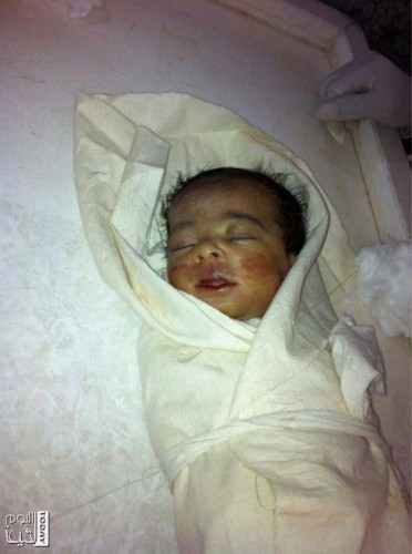 الشهيد الرضيع يحيى يوسف أحمد